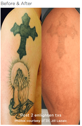 enlighten Tattoo Removal 1