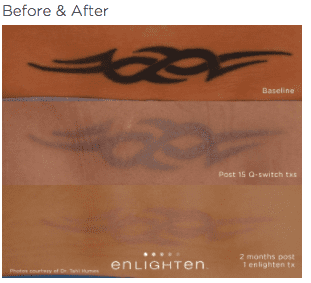 enlighten Tattoo Removal 2