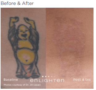 enlighten Tattoo Removal 3