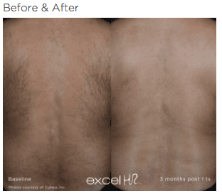 excel HR Hair Removal 1