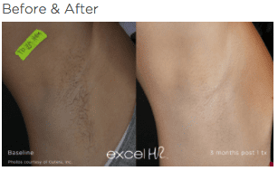 excel HR Hair Removal 2